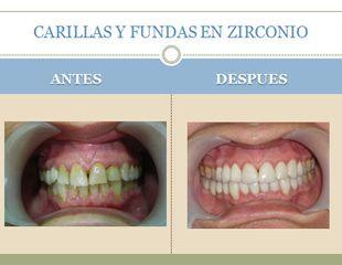 Antes y después Carillas y fundas de zirconio.