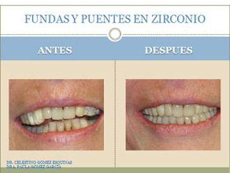 Ortodoncia-226899