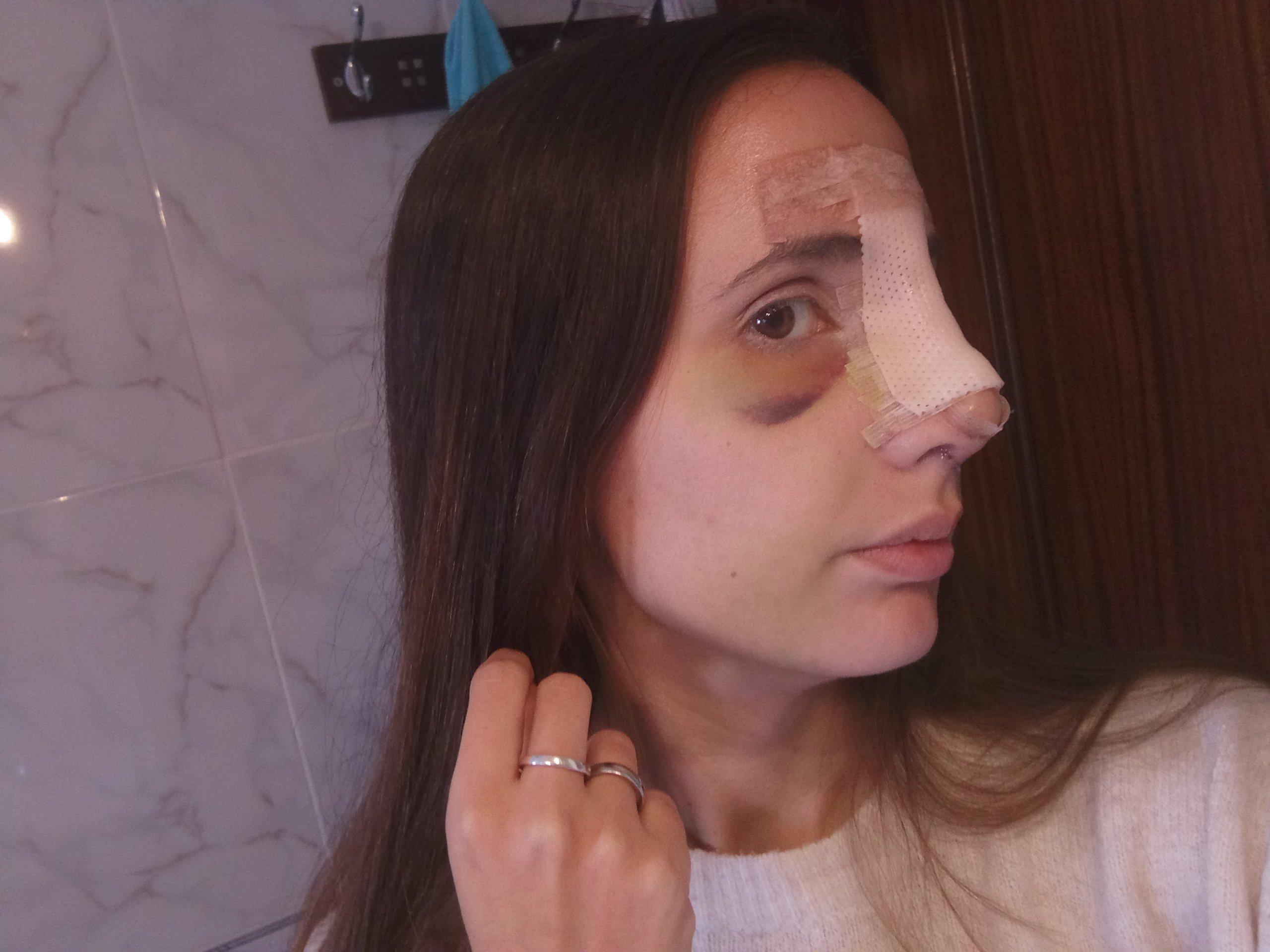 La nariz se siente obstruida después de la rinoplastia