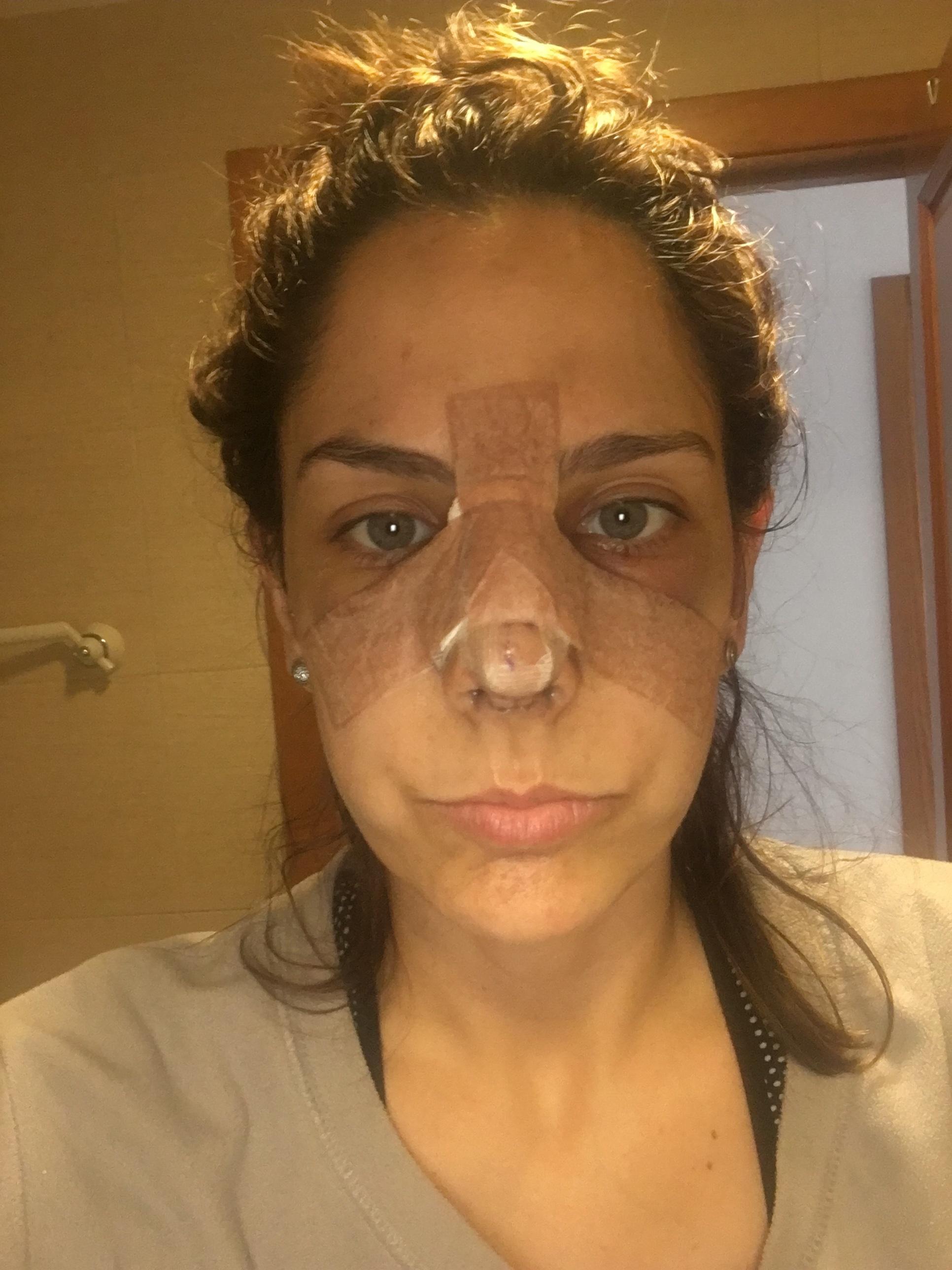 cuanto+tiempo+dura+la+recuperacion+de+cirugia+de+nariz