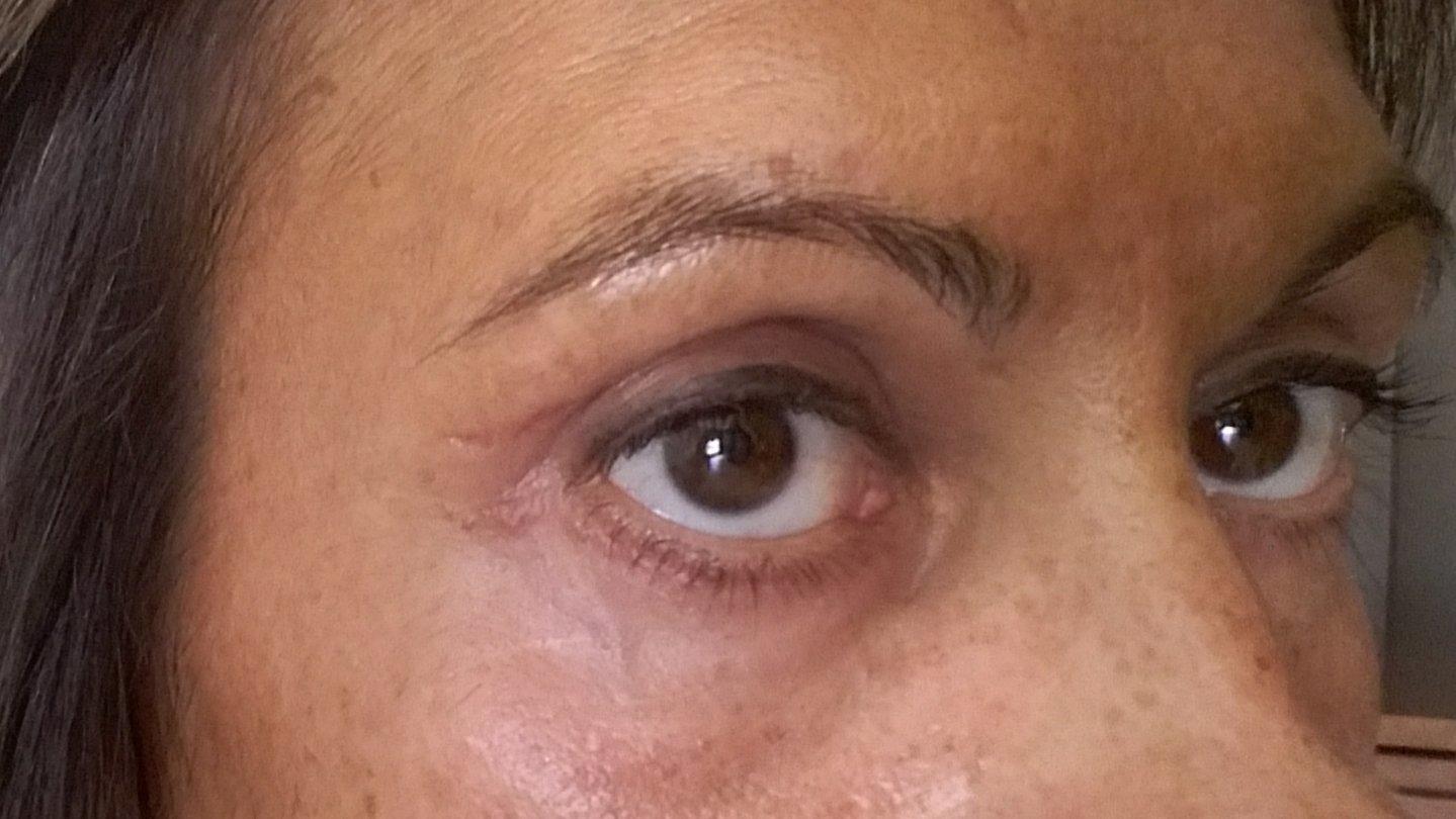 hematoma en el rabillo del ojo