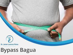 Bypass Bagua 13500