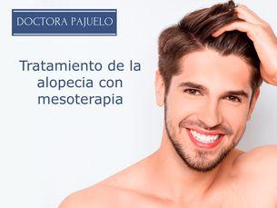 Tratamiento de la alopecia con mesoterapia antes 180 euros ahora 150 euros