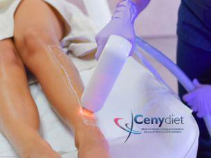 50% descuento en depilación Laser