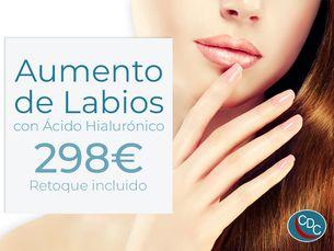Promoción aumento de labios con retoque incluido