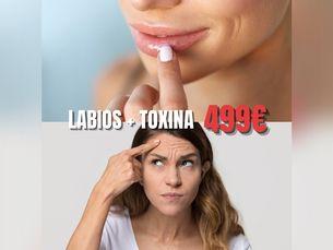 Promoción bótox + vial de ácido hialurónico, labios por 499 euros