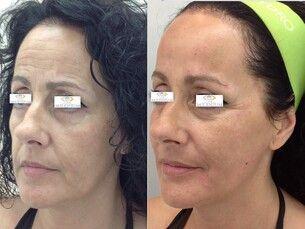 Rejuvenece el rostro en una sesión larga duración