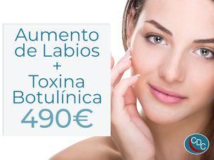 Pack Aumento de labios + Toxina botulínica