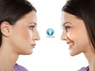 Mejoría estética de la nariz sin cirugía