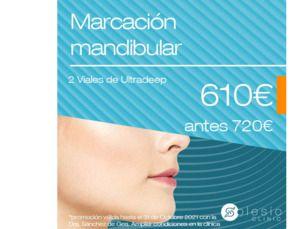 Marcación mandibular por 610€