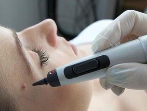 Crioterapia dermatológica: Elimina las imperfecciones de tu piel