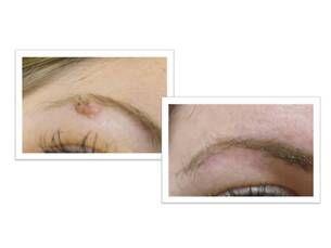 Elimina verrugas y otras imperfecciones de la piel con láser. desde 90€
