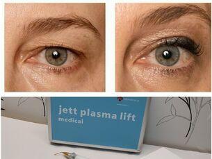 Lifting de párpados mediante tecnología plasma ¡Blefaroplastia sin cirugía