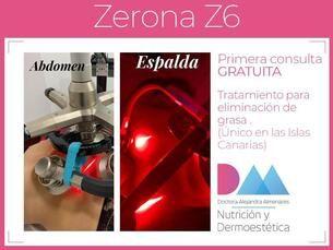 ¡Tratamiento para la eliminación de grasa único en Canarias!