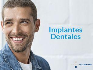 Implantes dentales con descuento