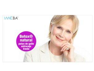 Botox® completo N°1 en Mallorca: 3 zonas 275€