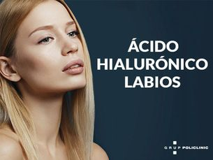 Ácido Hialurónico labios KISS