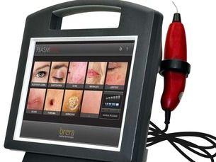Blefaroplastia sin cirugía al mejor precio con láser de plasma