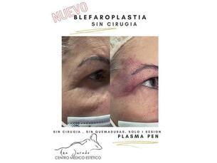 Blefaroplastia sin cirugía con un 20% de descuento