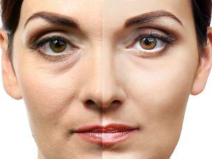 Ellansé tratamiento lifting facial 20% de descuento.