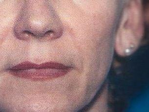 €1.750.  Lipotransferencia Facial. Lipofilling facial