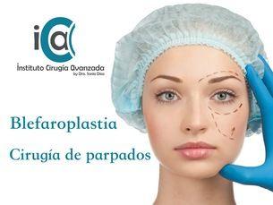 Blefaroplastia, cirugía de corrección de párpados