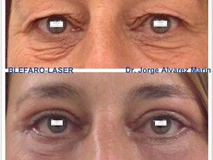 Rejuvenece tu mirada sin arriesgar tu salud ocular