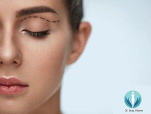 Blefaroplastia para rejuvenecer la mirada