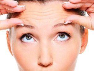 Promoción en Botox - 25 unidades por 180 euros
