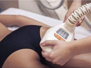 Velasmooth elimina la celulitis y la flacidez de cualquier zona del cuerpo