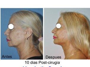 Mini-Lifting facial con anestesia local (4.500 €)