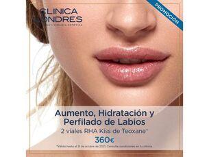 Aumento, hidratación y perfilado de labios por 360€