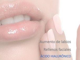 Ácido Hialurónico en Labios