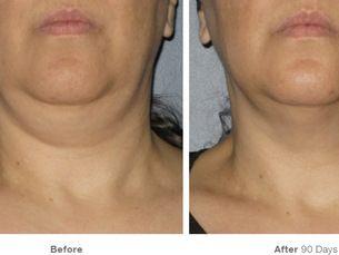 Ultherapy lifting facial-cuello