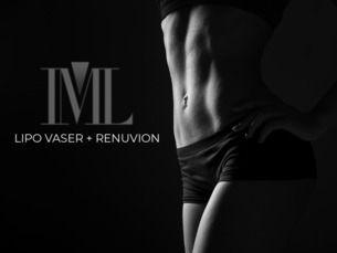 Lipo Vaser + Renuvion, sólo en IML