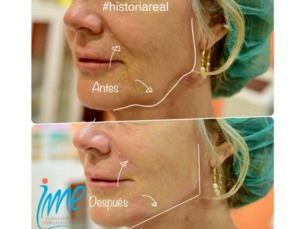 Rejuvenecimiento Facial 30 Dcto