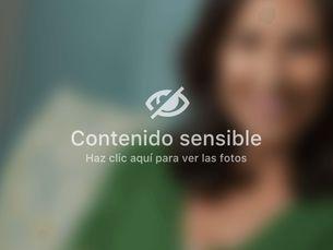 Mamoplastia de reducción con o sin prótesis desde 4500€