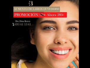Aumento de labios - ahora 280€