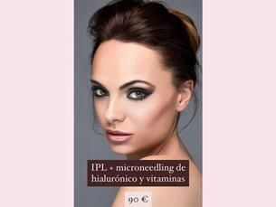 IPL y microneedling de hialurónico y vitaminas