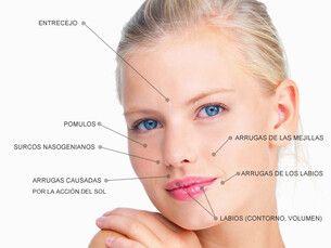 ¡Comienza el año sin arrugas! Acido hialuronico 35% decuento,  Botox 100€