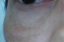 Me puse botóx y tengo la cara desfigurada. Ayuda! ! - 1367
