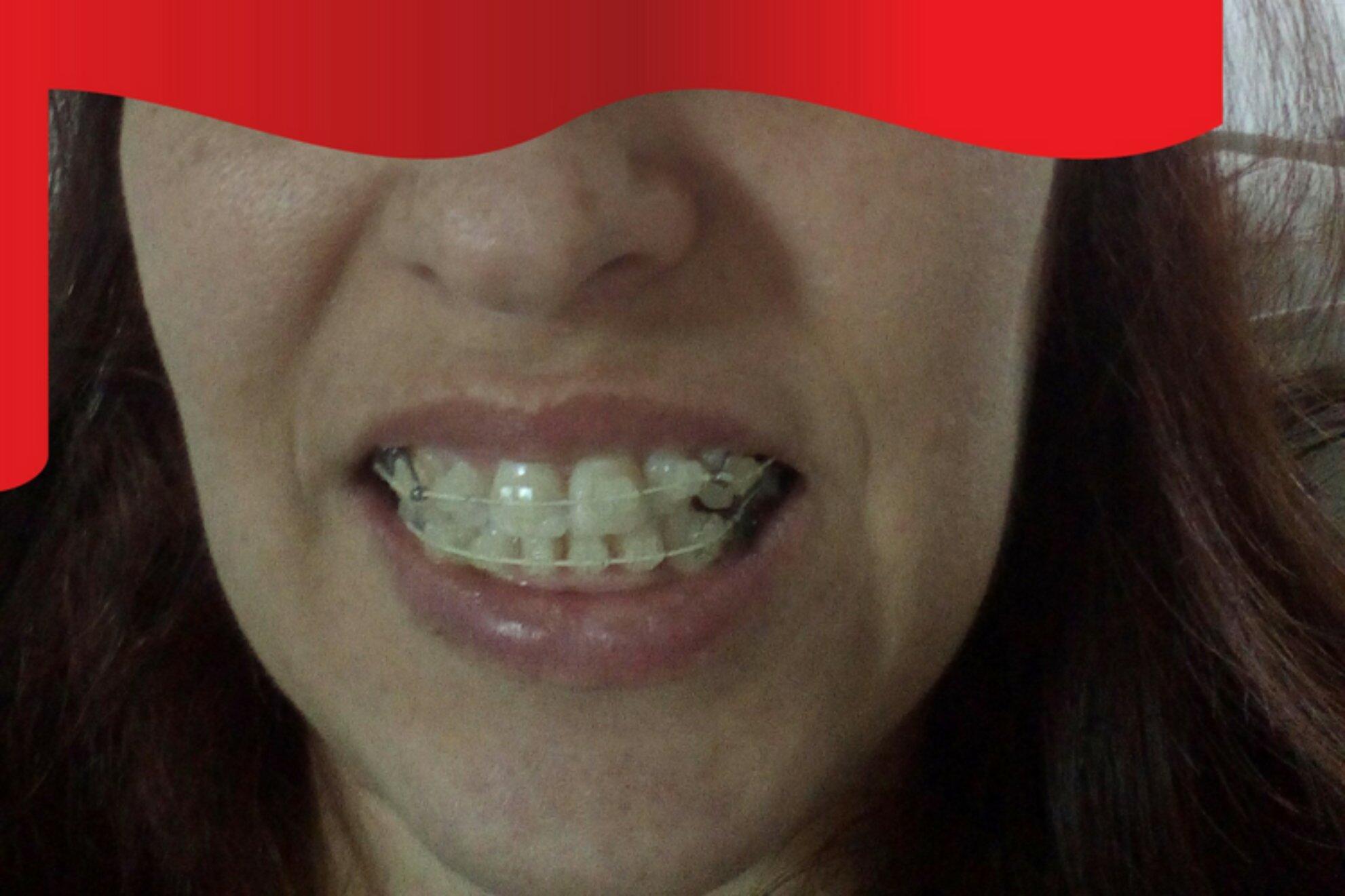 Ortodoncia con extracciones, linea desviada - 1368