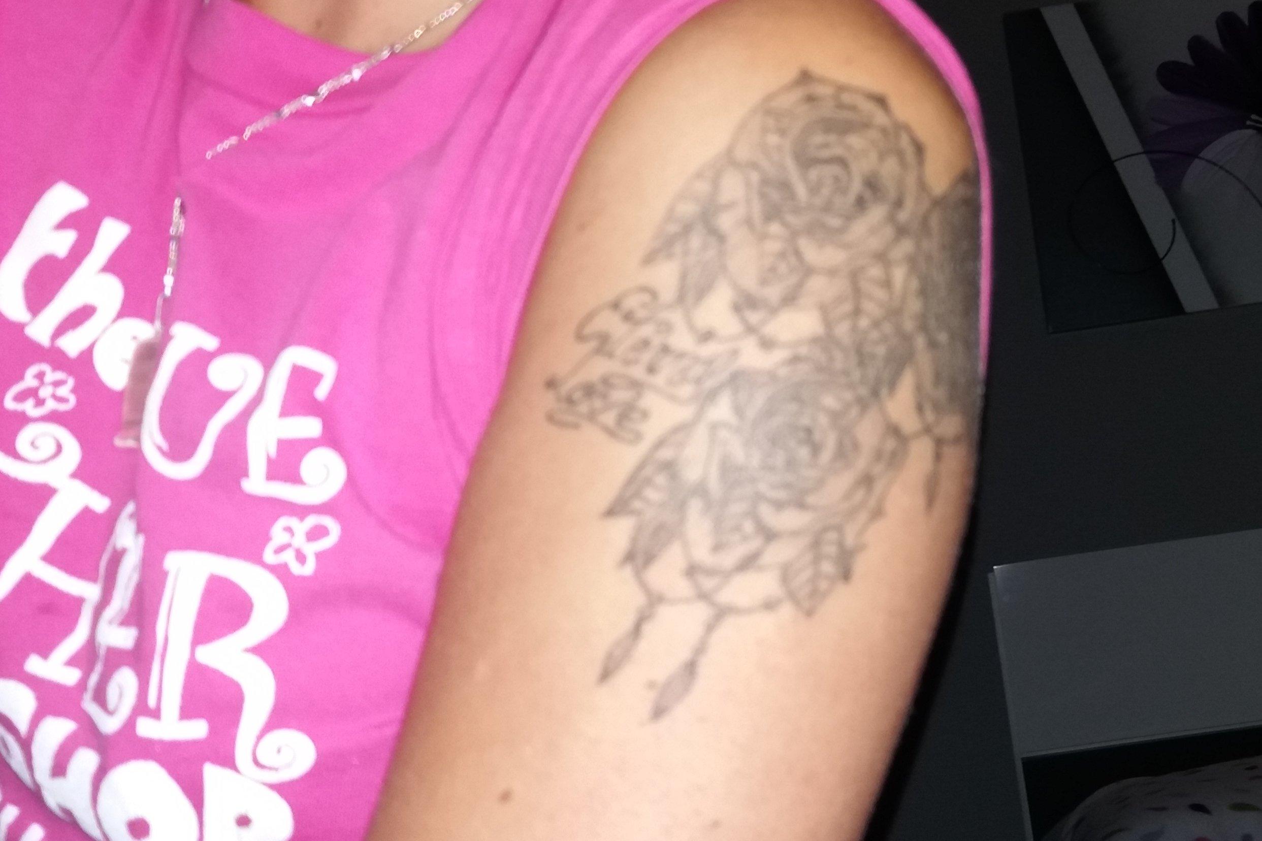Quisiera saber el presupuesto para borrarme un tatuaje - 1686