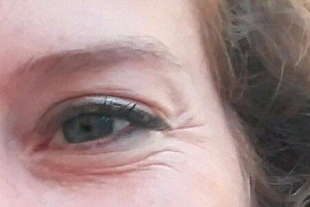 Botox en la zona de los parpados y ojeras - 2926