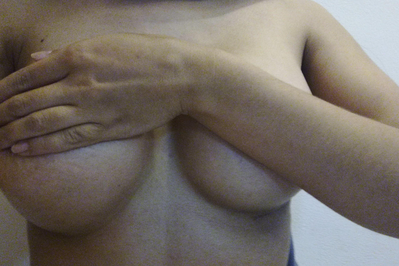 Pecho mas alto que otro después de mamoplastia de aumento - 3154