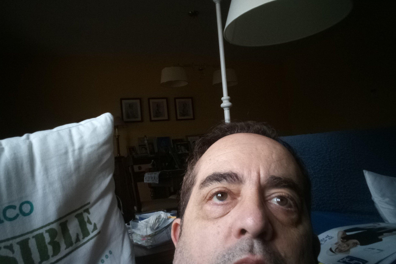 Tengo bolsas y ojeras,no me quiero operar y necesito un tratamiento asequible. - 4675