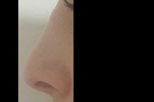 Giba post-rinoplastia gafas, ¿desaparece? ¿solución? AYUDA!! - 5425