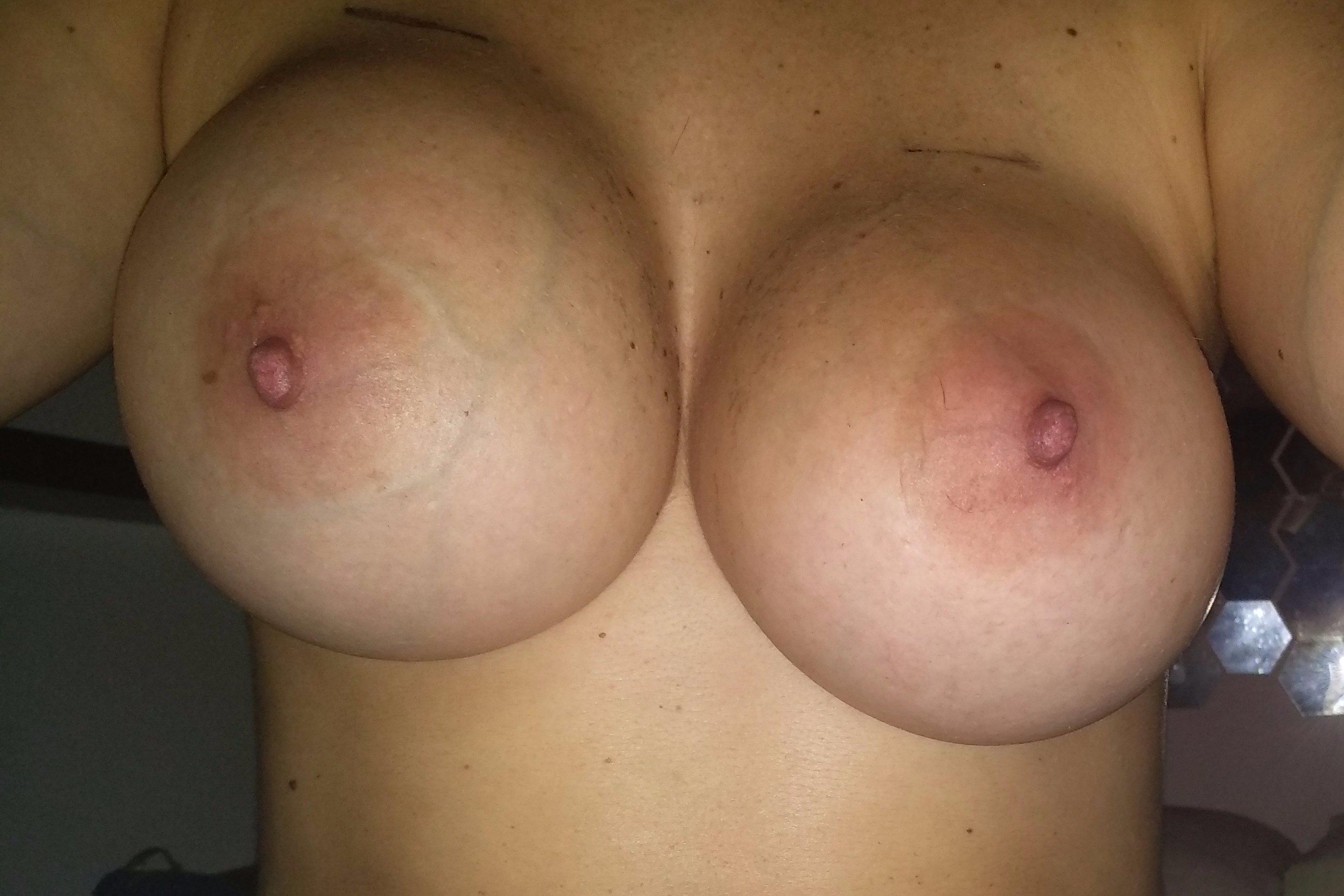 Asimetría después de aumento de senos - 5720