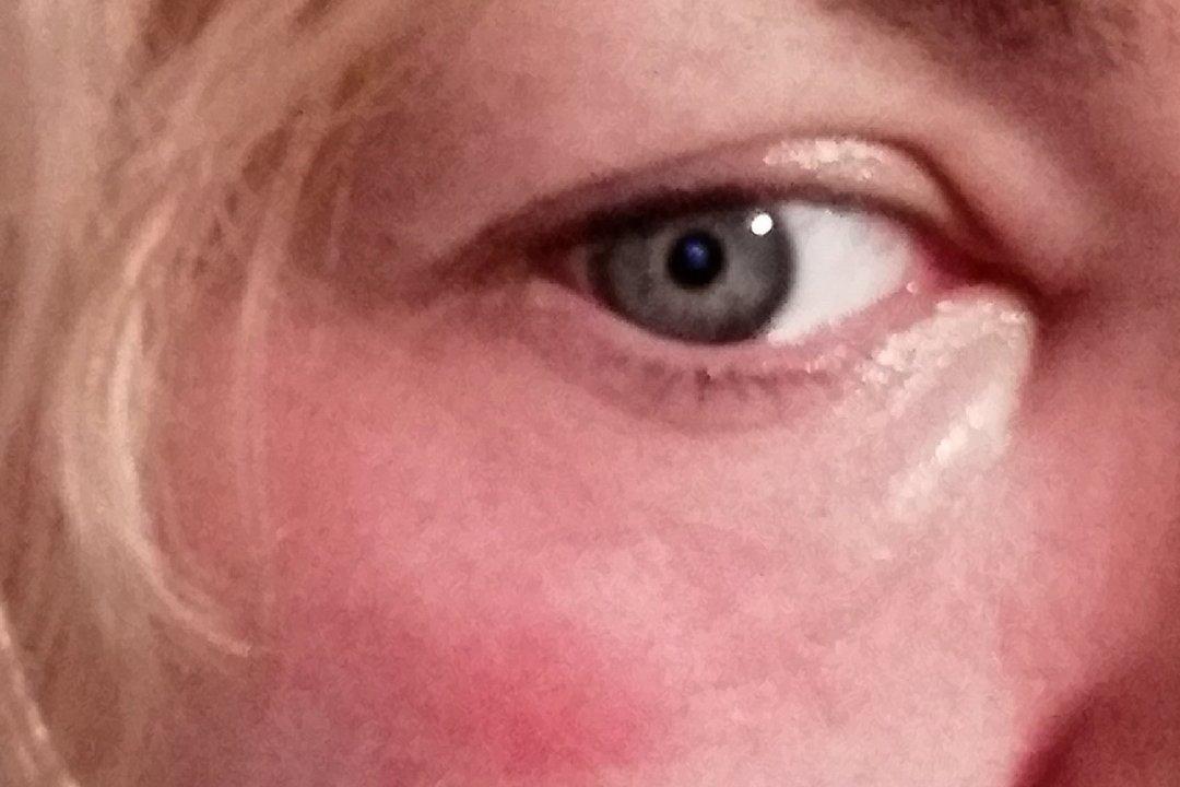 Peeling cosmelan después de botox - 5860