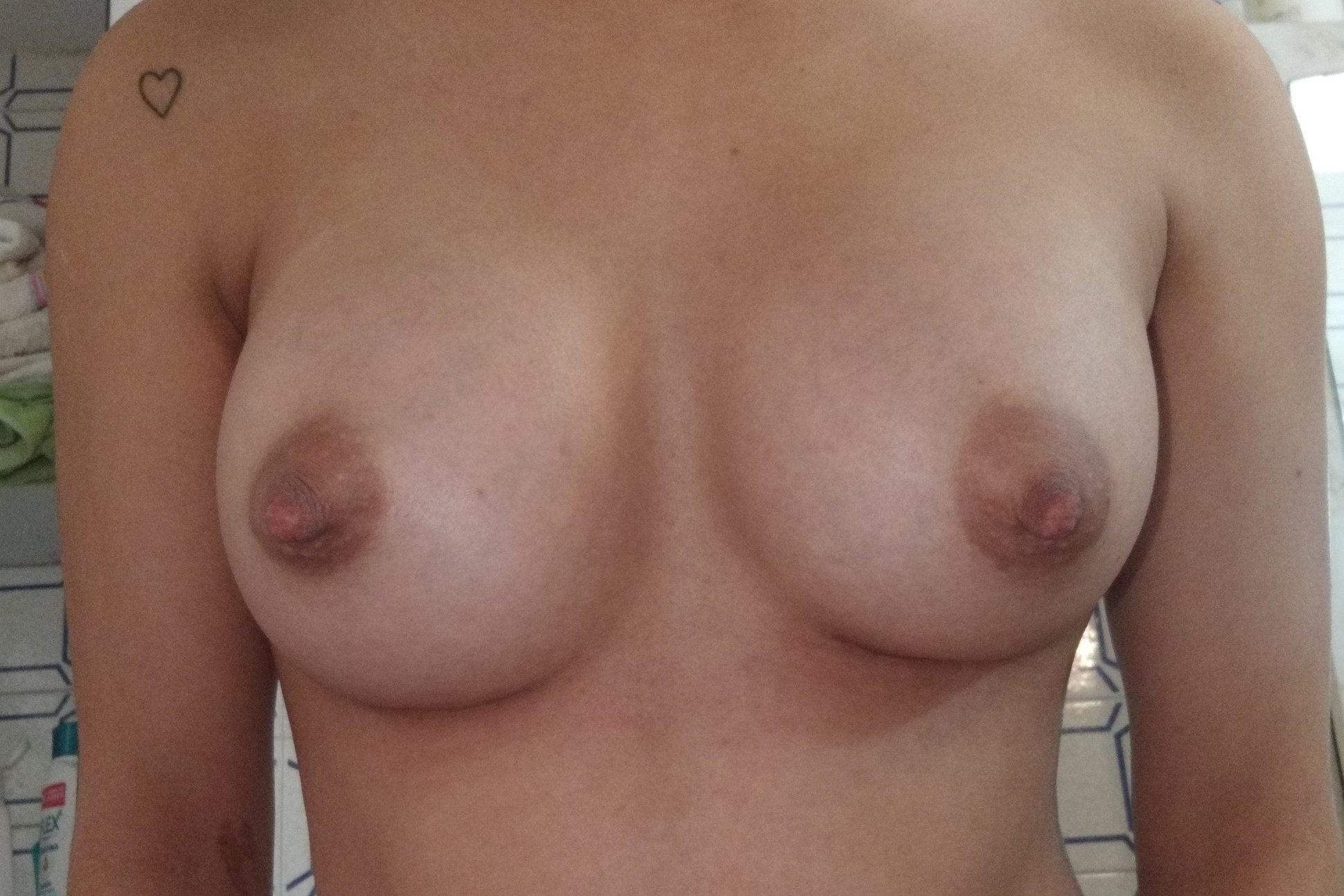 Puede bajar el surco mamario despues de aumento de senos? - 6014